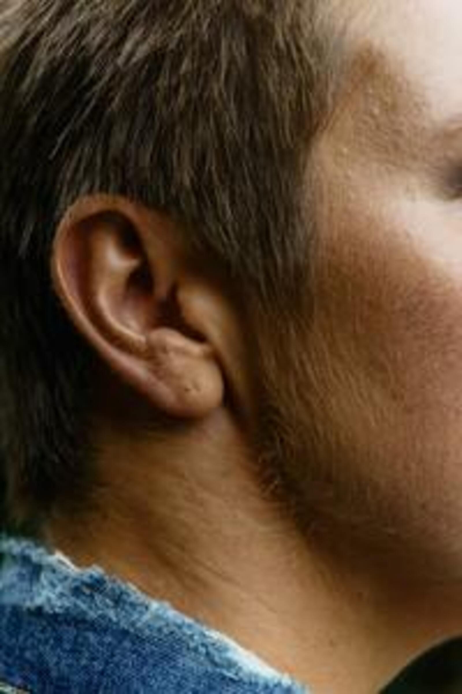 Ohrensausen